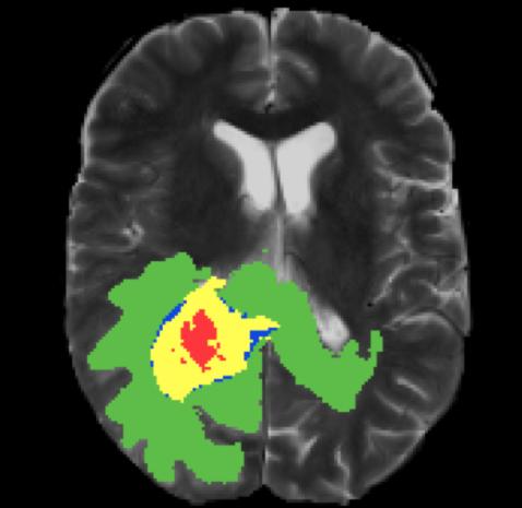 Deep learning for brain tumor segmentation